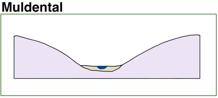 muldental-schema-skizze-talform